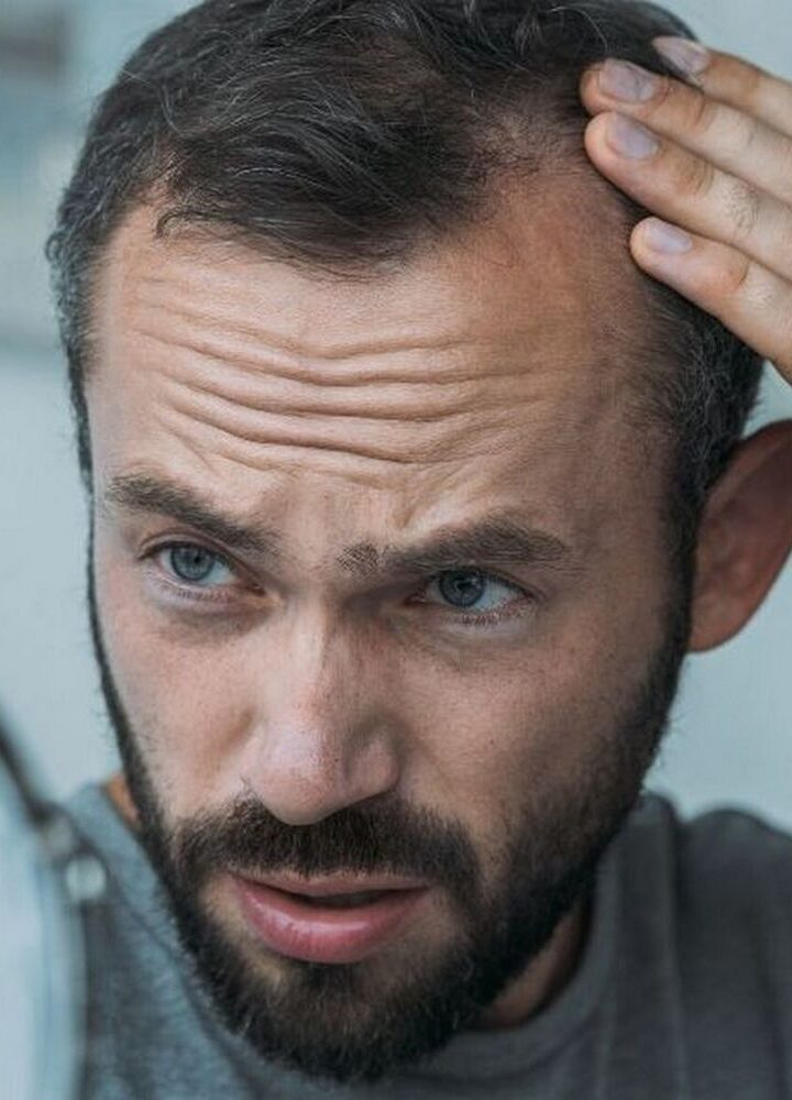 Zauważyłeś pierwsze oznaki łysienia? Sprawdź, jak możesz temu zapobiec