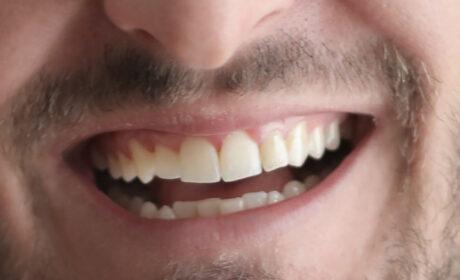 Jak skutecznie i bezpiecznie wybielić zęby?